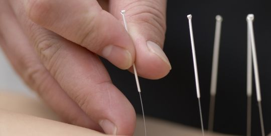 acupuncture in palm harbor