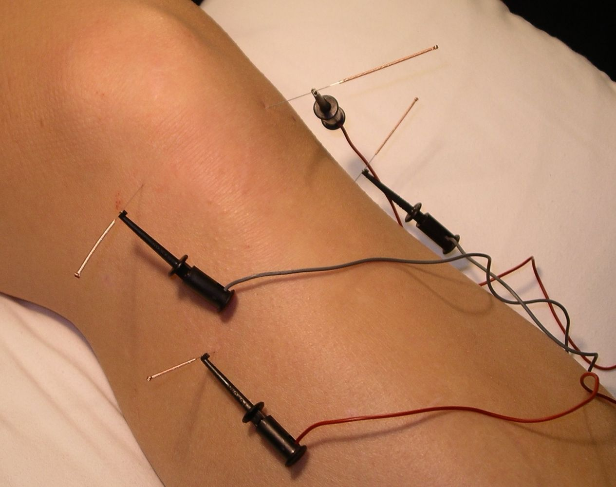 electro acupuncture machine