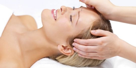 palm harbor Facial Aucpuncture