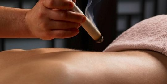palm harbor Moxibustion