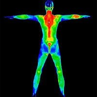 Thermography Full-Body-Scan