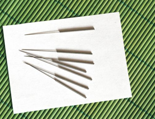 Why There's No Need to Fear Acupuncture Needles