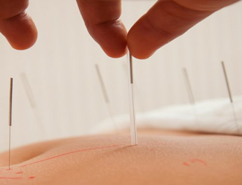 Acupuncture and Pain Management – Know the Facts