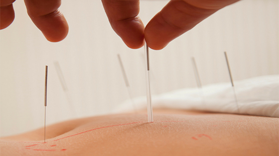 acupuncture-for-pain-in-Palm Harbor
