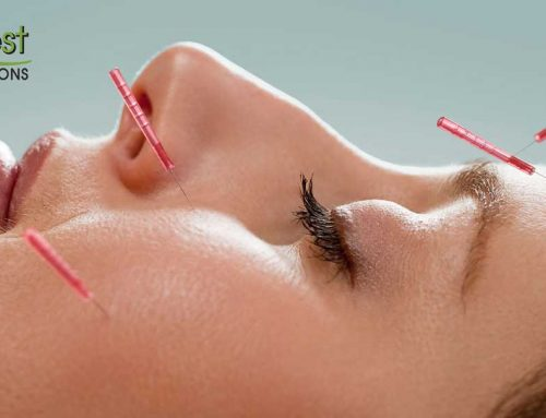 Is Acupuncture an Effective Migraine Treatment Option?