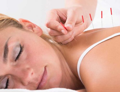 What are the Different Types of Acupuncture You Can Try?