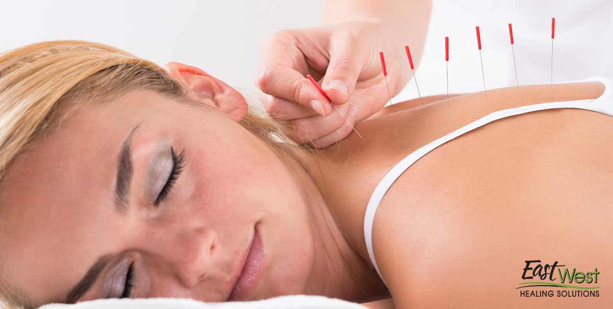 types-of-acupuncture