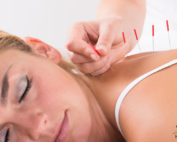 facts-about-acupuncture
