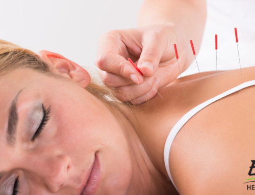 5 Interesting Facts about Acupuncture Therapy for Pain Management